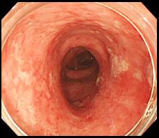 潰瘍性大腸炎の症例写真