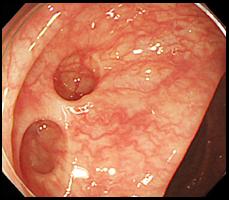 大腸憩室症の症例写真