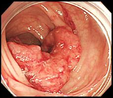 進行大腸癌の症例写真