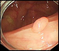 大腸ポリープの症例写真